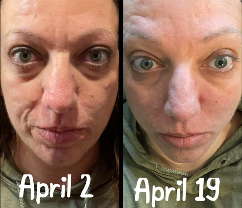 amplifei hapitides results